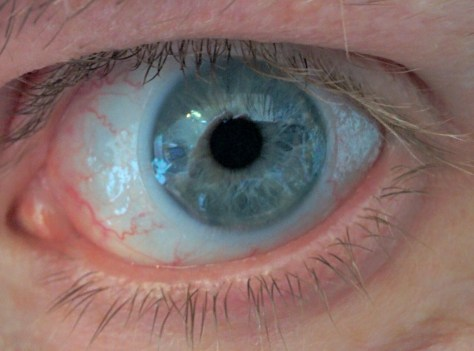 """Like 8% of the rest of the world, my eyes are commonly described as """"blue"""". Also, slightly bloodshot due to overcaffeination."""