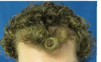ثمانية أشهر بعد عملية زراعة الشعر