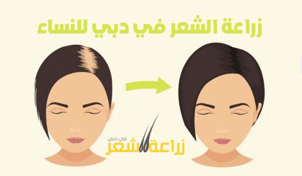 زراعة الشعر في دبي للنساء