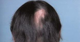 هل يمكن لمصاب بالثعلبه القيام بعملية زراعة الشعر ؟