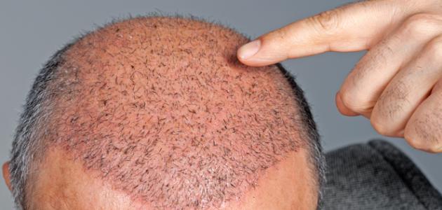 أفضل دول زراعة الشعر