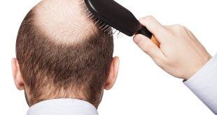زراعة الشعر الصناعي في دبي