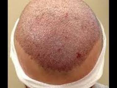 التعليمات الواجب إتباعها بعد القيام بعملية زراعة الشعر