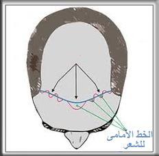 خط الرأس الأمامي - زراعة الشعر بتقنية الشريحة FUT 2222
