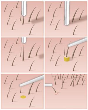 مرحلة زرع البصيلات - زراعة الشعر بالاقتطاف FUE