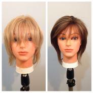 hair replacement boston