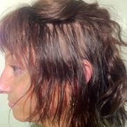 hair loss replacement for women boston