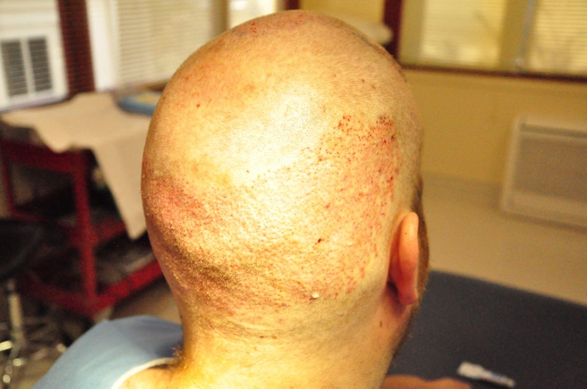 Hair transplant, photo on day of surgery