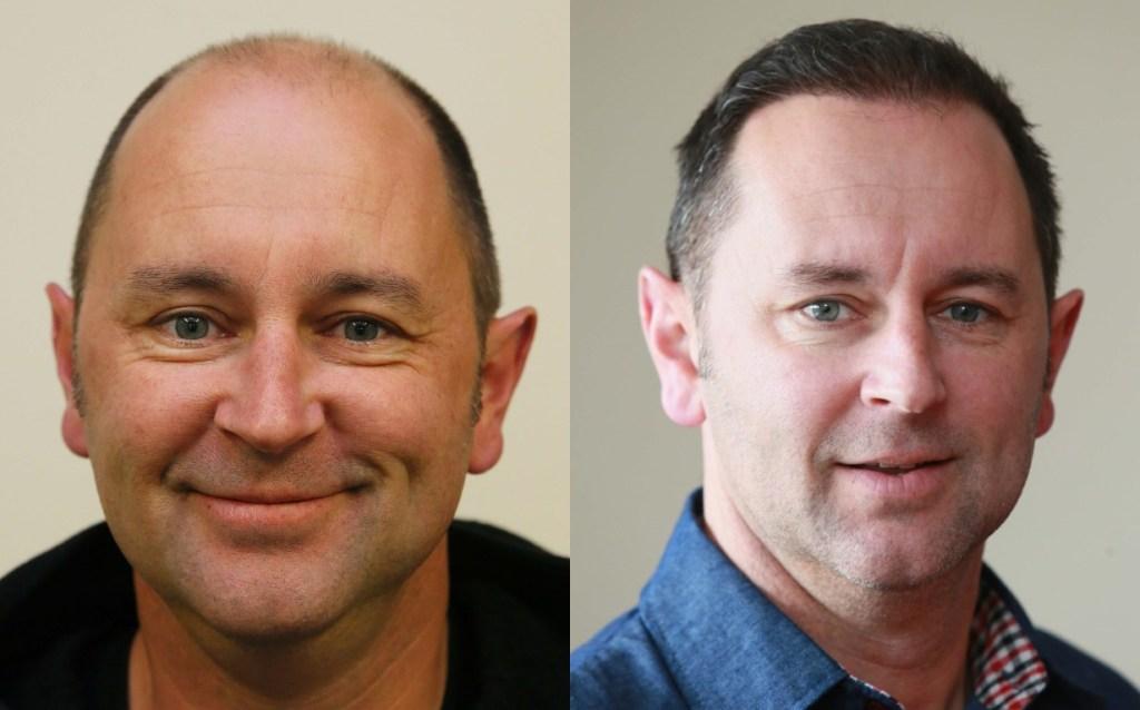 Hair Transplant - Hair restoration NZ