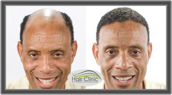 Hair Restoration Therapy from Hair Clinic International