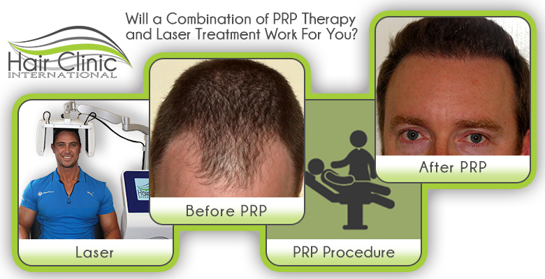 PRP Therapy and Laser Treatments