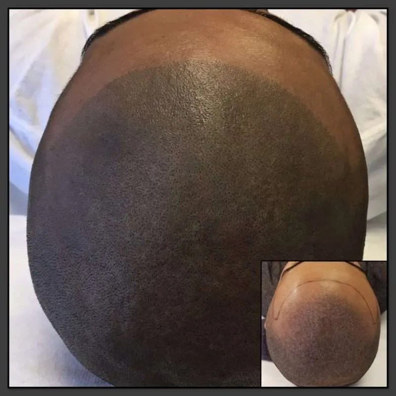 Hair Illusions BE Testimonial