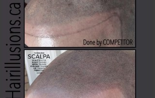 Scalp MicroPigmentation Before and After SMP - Hair Illusions