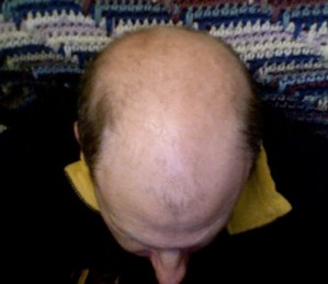 Bald_head_hair_loss_cure-04-featured