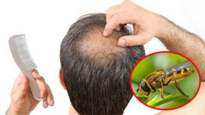 bee-propolis-hair-losss-baldness-cure