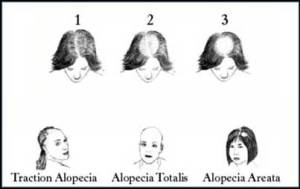 hair-loss-women-different-stages