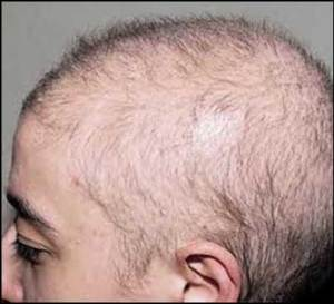 anagen-Effluvium-type-of-hair-loss