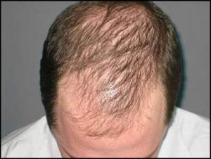 androgenetic-alopecia-type-of-hair-loss