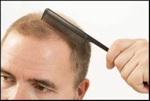 male-pattern-baldness-cure-SM04554-