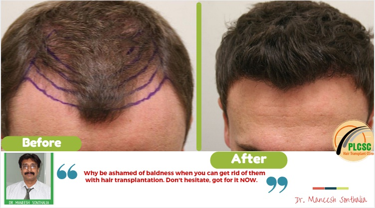 10 Reasons Why Beard to Scalp Hair Transplant Is On the Rise