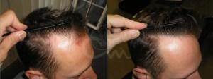 Hairmax lasertherapy foto 2 - Hairmax Lasertherapy Shop