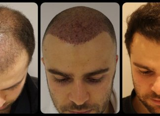 Hair Transplant in Delhi, Cheap and Best Deals