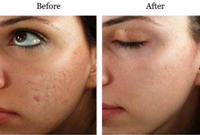 Micro-needling Best Treatment for All Skin Disorder