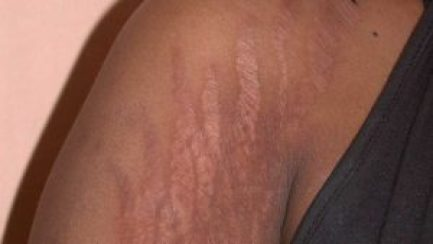 Want to Remove Stretch Marks Permanently These Treatment Will Help You Out
