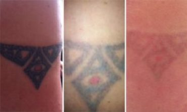 Proper Information About Tattoo Removal, Procedures and Common Faq