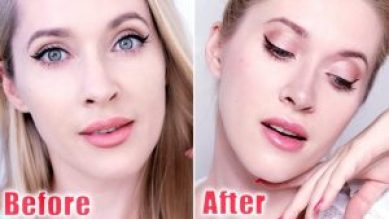Non-surgical Nose Job best Treatment, Recovery, and Results