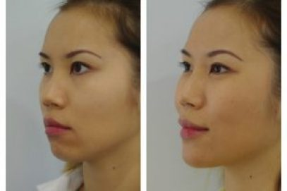 Know All About Non- Surgical Chin Augmentation Treatment