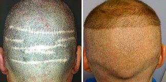 FUE Vs FUT Hair Transplant Full Detail