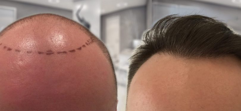 Planning-your-hair-transplant