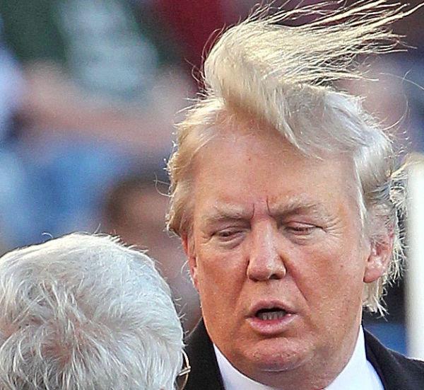 hair-loss-donald-trump