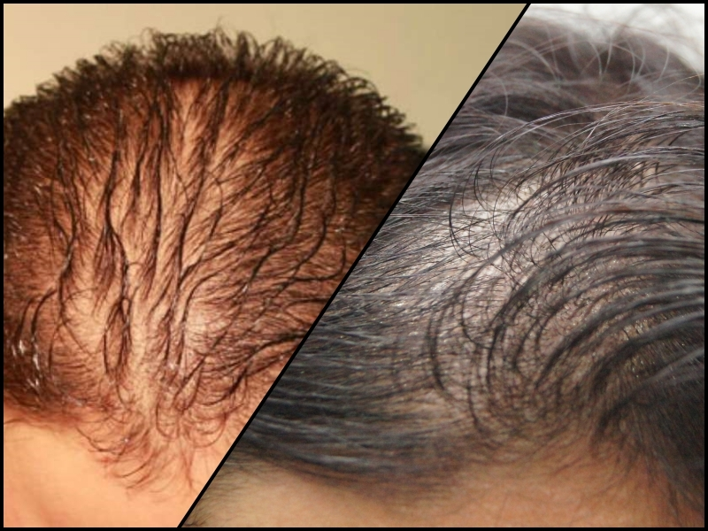 When Hair Loss Becomes Hair Shedding - Telogen Effluvium