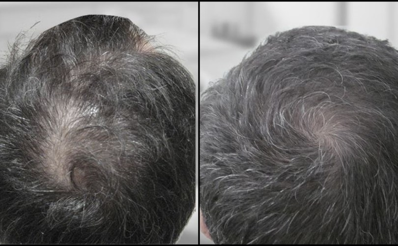 Pros and Cons to Surgical Hair Restoration