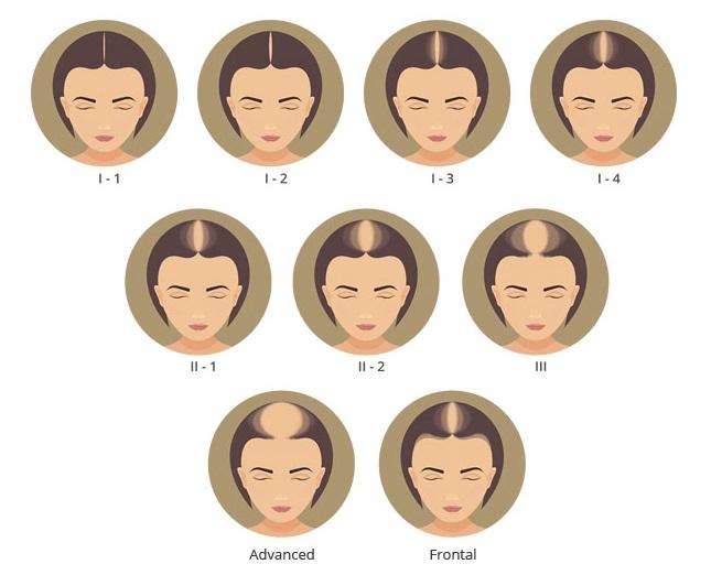 female hair loss patterns