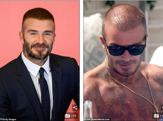 David-Beckham-43-years-hair-thinning