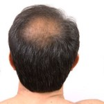 Can A Hair Transplant Deliver Coverage and Hair Density?