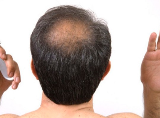 Crown Hair Loss
