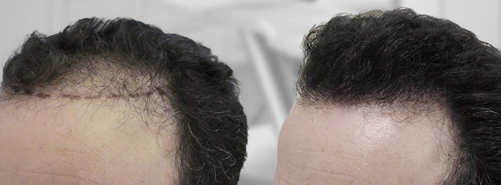 FUE Hair Transplant Result