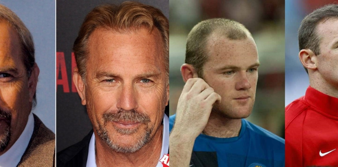 celebrity hair loss and hair transplants