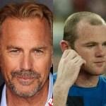 Hair Loss Can Effect Anyone