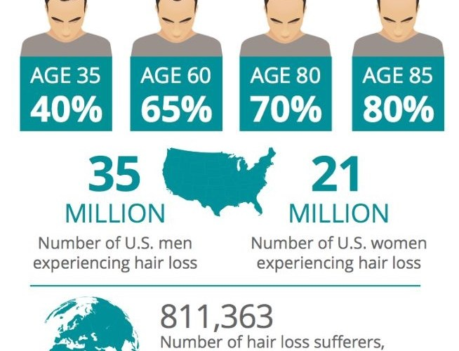 Hair Loss Facts