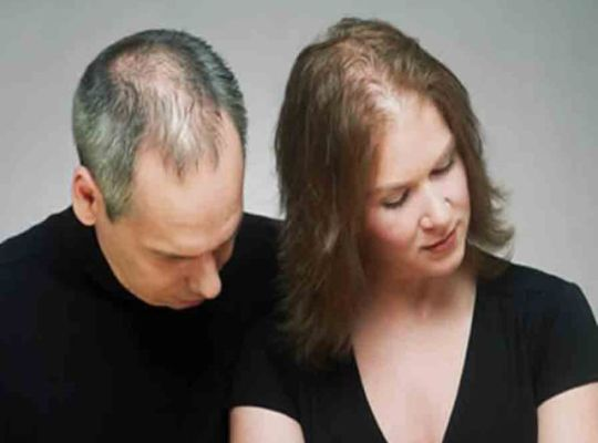 hair-loss-myths-men-and-women
