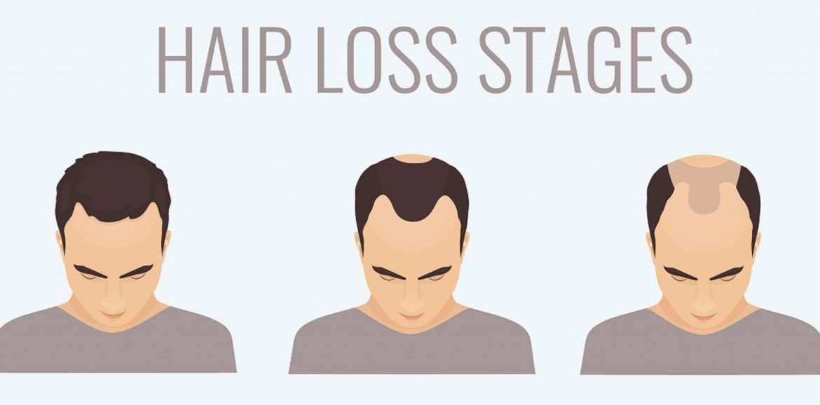 Male Pattern Baldness Norwood Scale Stages