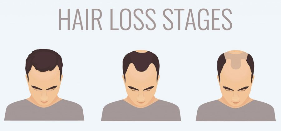 hair loss stages 1