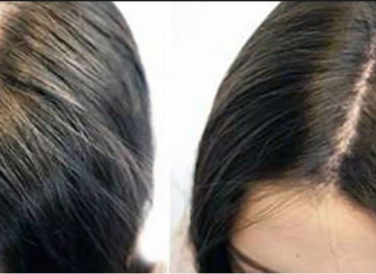 hair-loss-treatment-for-women
