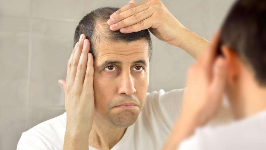 Basics About Male Pattern Baldness