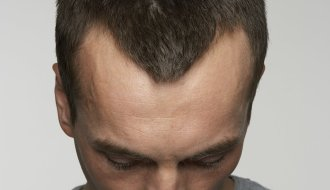 What Can Be Done About A Receding Hairline